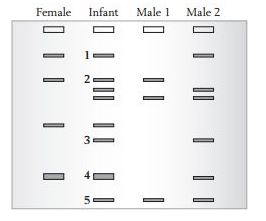 Dna Fingerprinting And Paternity Answer Key - Dna ...